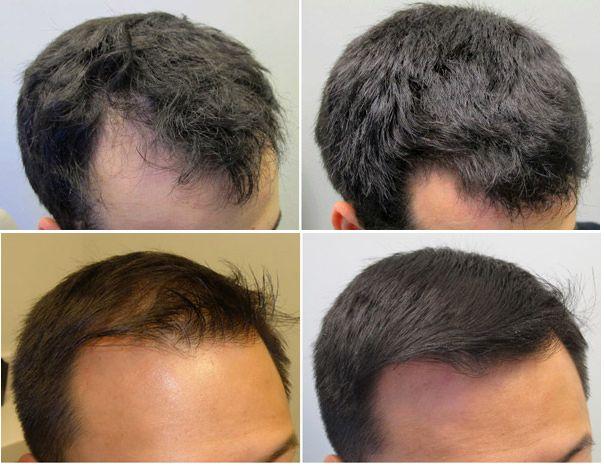 fortalecer cabelos