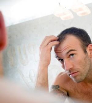 queda-de-cabelo-tem-cura